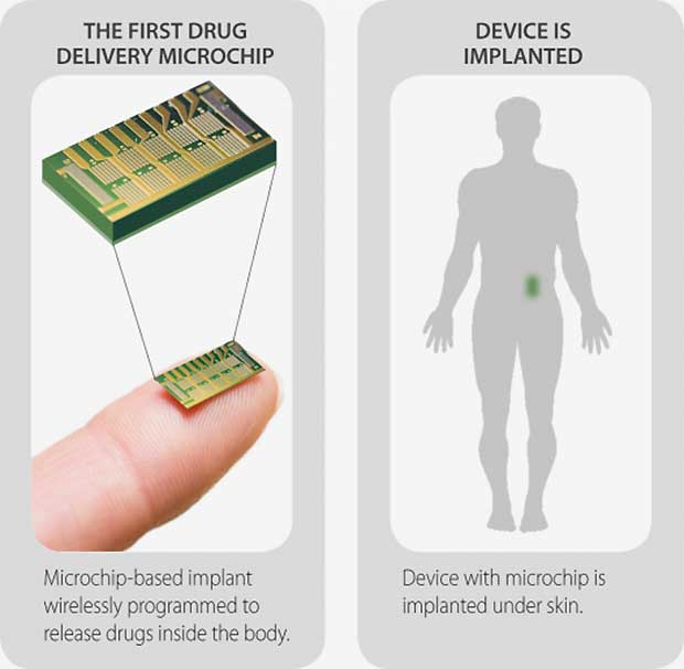 contraceptive-implant-with-remote-control