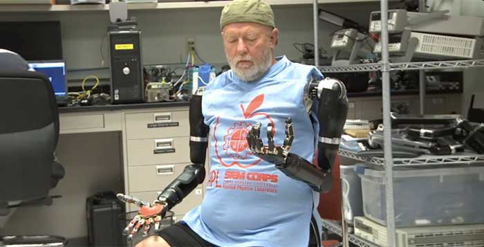 Man Controls Two Prosthetic Arms With His Mind