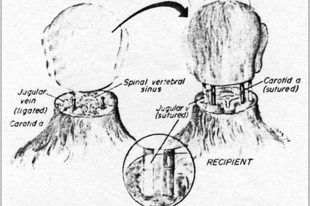 Italian Scientist Claims the First Human Head Transplant