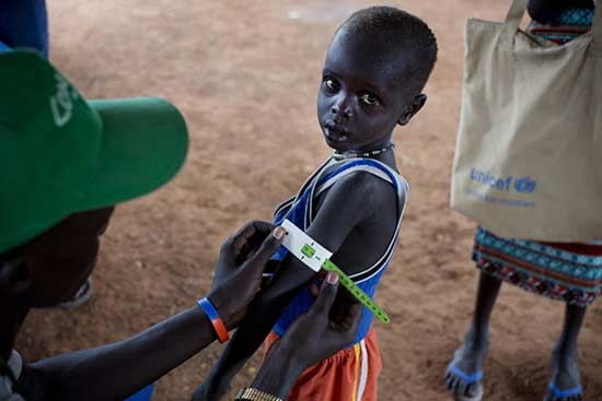 Famine Declared In South Sudan As 100000 People Face Starvation